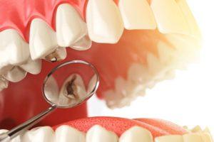 haciendo una endodoncia