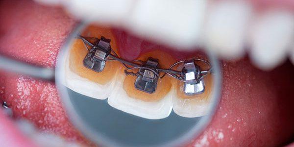 foto de una ortodoncia