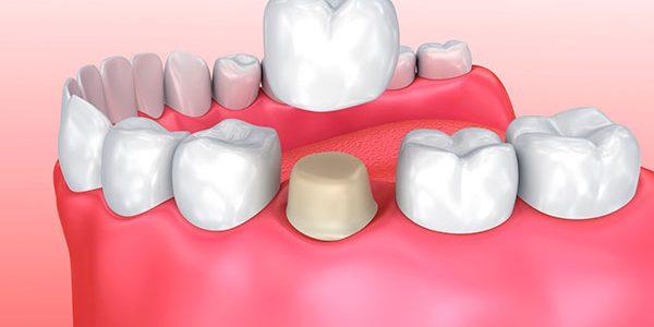 http://clinicadentalirenemorales.com/wp-content/uploads/2017/04/Odontologia-1-600x300.jpg