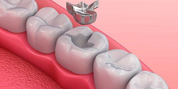 realizando un empaste en un diente