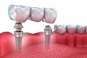imagen de como se hace un implante dental