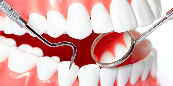boca con blanqueamiento dental